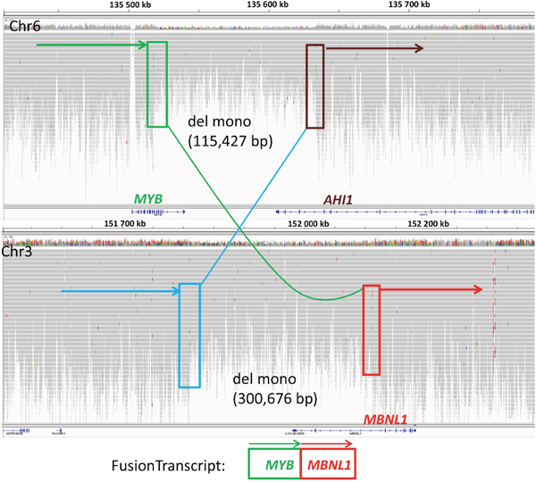 Integrative genomics viewer (IGV) visualization of alignments of the Illumina reads from the whole genome sequence analysis of SS patient (P6) for chromosome 6 (top) and 3 (bottom).