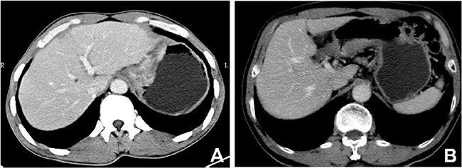 Contrast-enhanced computed tomography images of mucinous gastric carcinoma.