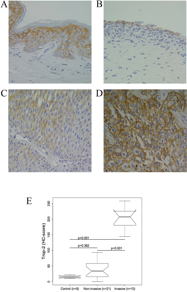 Representative immunohistochemical Trop-2 staining in normal bladder tissue and urothelium from patients with bladder cancer (BC).