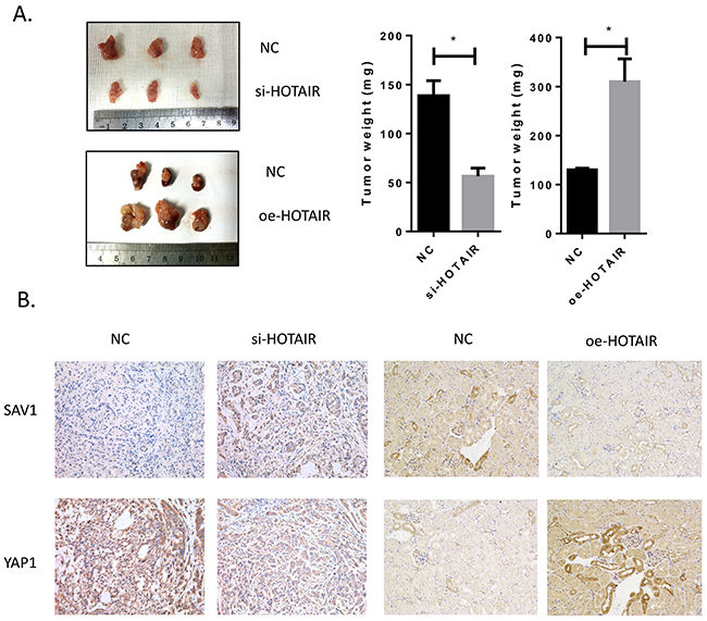 Tumor growth was suppressed by HOTAIR knockdown.