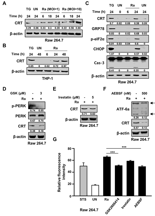 Mycobacterium tuberculosis (Mtb) infection induces calreticulin (CRT) production and the endoplasmic reticulum (ER) stress response in macrophages.