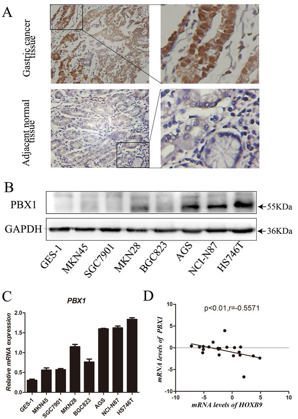 Expression of PBX1 in GC tissues and cells.