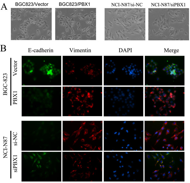 Effect of PBX1 overexpression and knockdown on cell morphology.