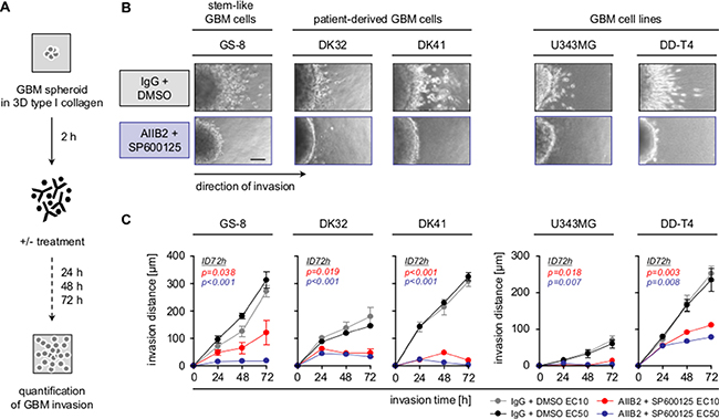 Combined β1 integrin/JNK targeting blocks GBM cell invasion.