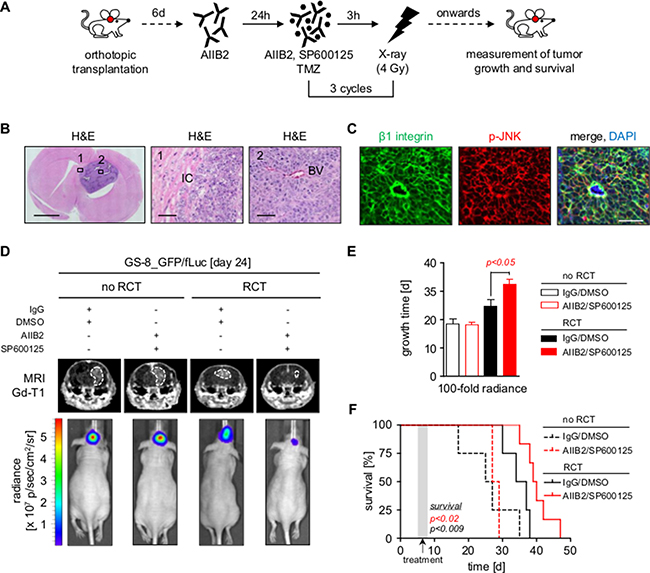 Dual inhibition of β1 integrin and JNK delays tumor growth and prolongs survival in combination with radiochemotherapy.