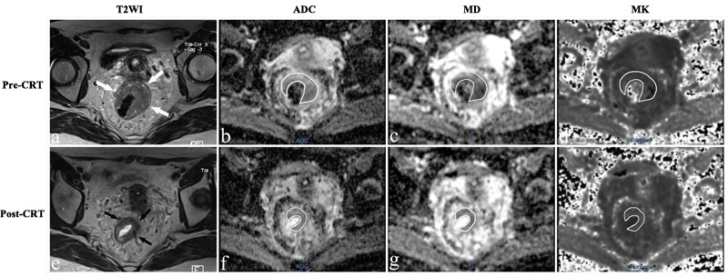 MR images of a 43-year-old woman with a non-pCR.