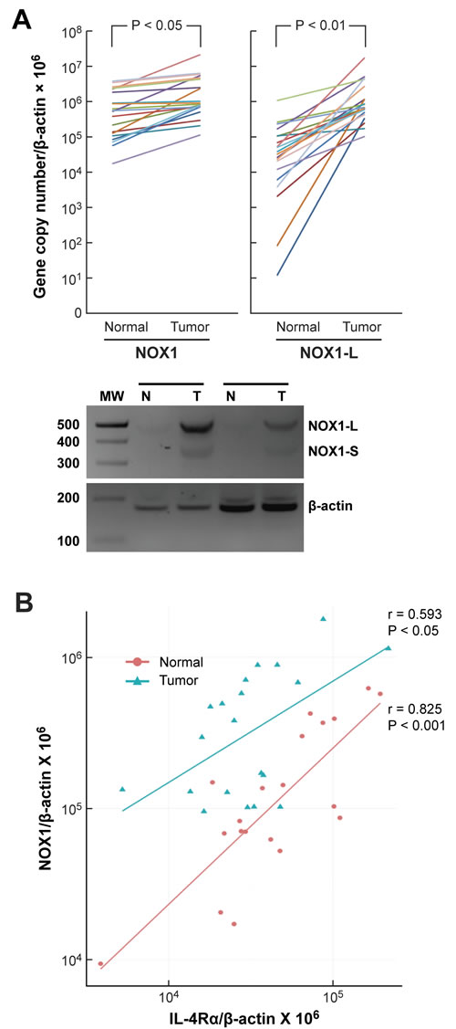 NOX1 expression in human colon cancers and adjacent uninvolved colonic epithelium and its relationship to IL-4Rα expression.