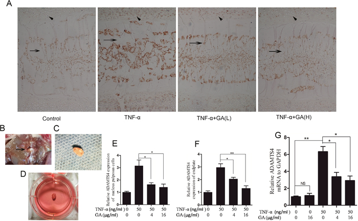 GA suppresses TNF-α-induced secretion of ADAMTS4 in rat intervertebral discs.