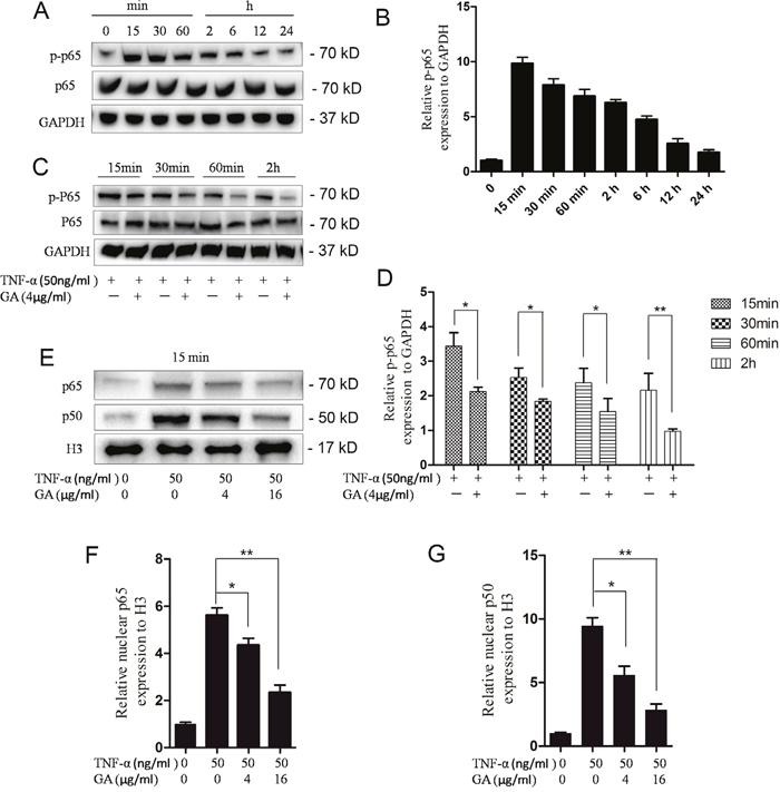 GA inhibits p65 phosphorylation and p65-p50 intranuclear.