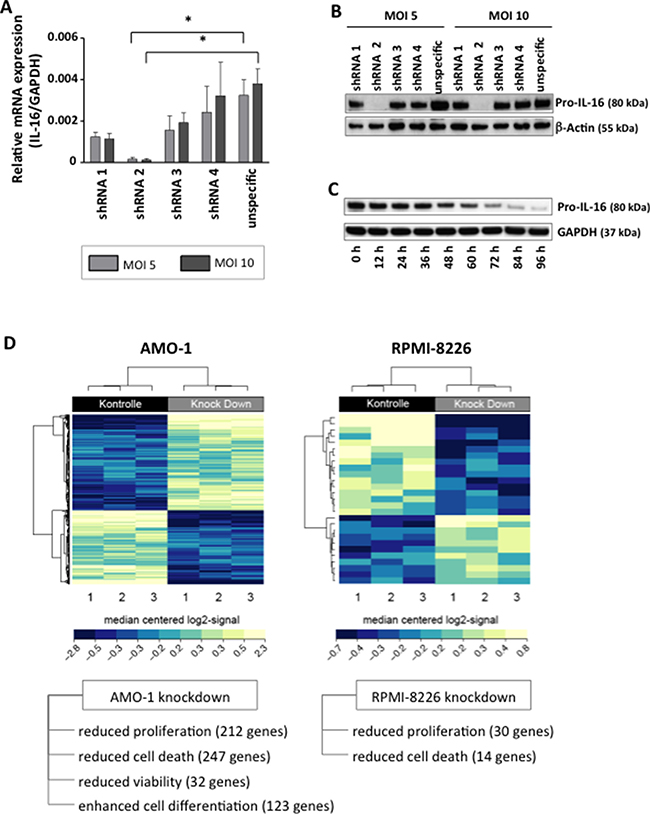Downregulation of IL-16 in MM cell lines and genome-wide mRNA expression analysis.