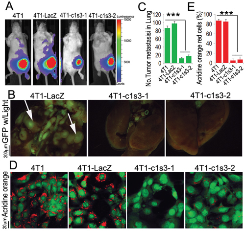 ATP6v1c1 knockdown in 4T1 tumor cells inhibits 4T1 tumor cells metastasis by impairing V-ATPase function.