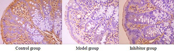 The expression of AQP3 in the colon by immunohistochemical technique (*400) AQP3 positive reaction material presents brown, the cell membrane and cytoplasm were dyed.