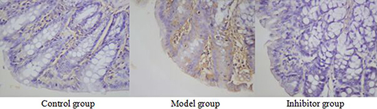 The expression of NF-κB p65 in the colon by immunohistochemical technique (*400) NF-kB p65 positive reaction material presents brown, the cell nucleus was dyed, the cell membrane and cytoplasm were not dyed.