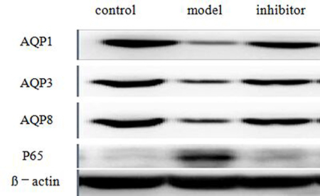 The expressions of AQP1, AQP3, AQP8 and NF-κB p65 in the colon by Western blot technique.