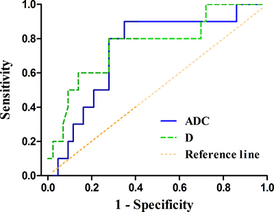 The receiver operating characteristic (ROC) curves of the apparent diffusion coefficient (ADC) and pure diffusion coefficient (D) values in distinguishing HER2 positive gastric cancers from HER2 negative ones (area under the ROC curve, AUC = 0.733, 0.762, respectively)