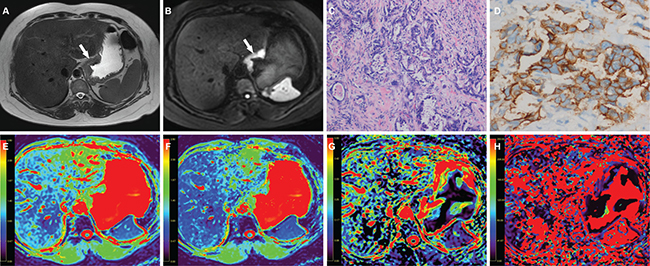 A 51-year-old woman with gastric cancer, at stage IIIB (T3N2M0).