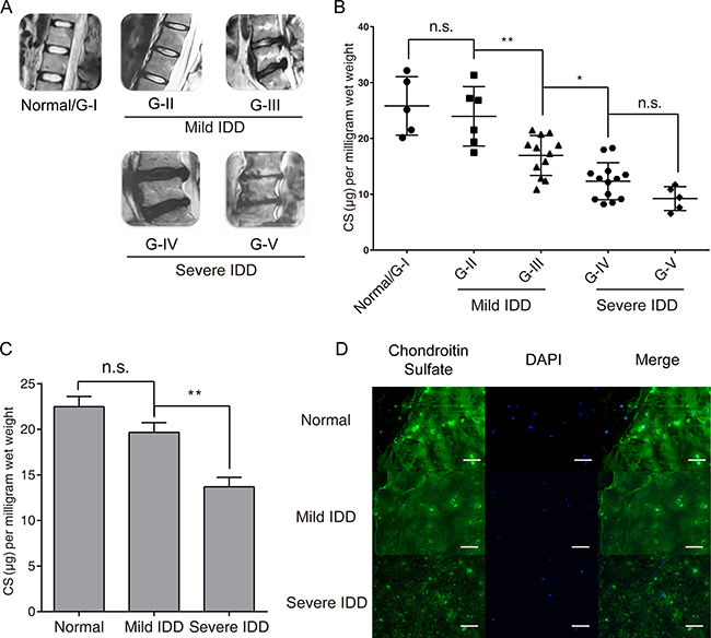 CS concentration reduced significantly in degenerated human intervertebral disc tissues.