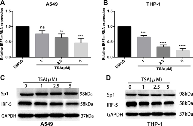 TSA inhibits mRNA and protein expression levels of IRF5.
