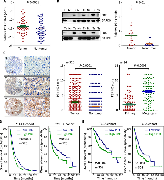 PBK expression is up-regulated in HCC and associated with poor outcomes.