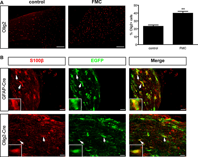 Mouse optic gliomas harbor increased numbers of Olig2+ cells.