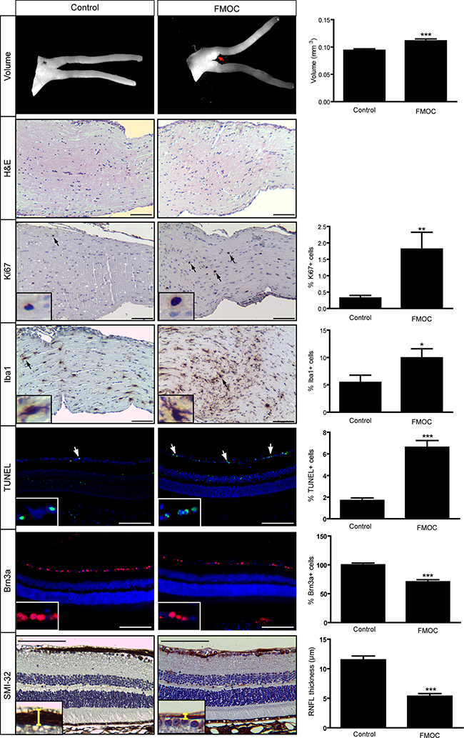 FMOC mice develop optic glioma by 6 months of age.