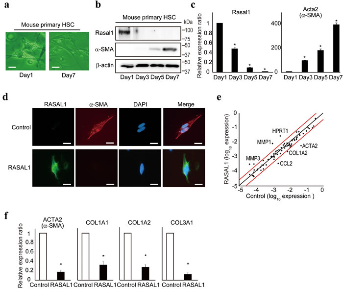 RASAL1 suppresses the activity of HSCs.