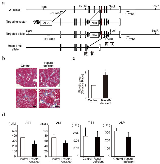 RASAL1-deficient mice are more susceptible to liver fibrosis.