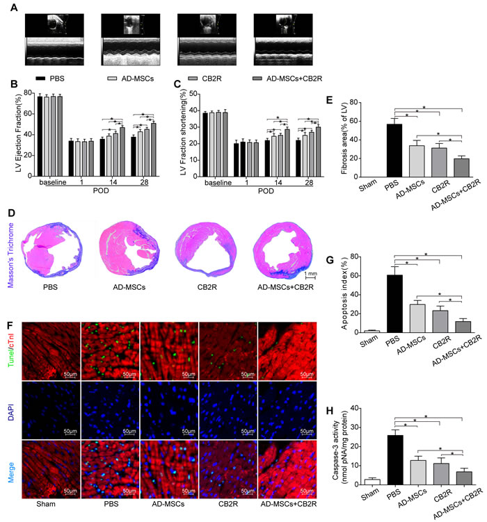 Effects of AD-MSCs and CB2 agonist treatment on post-MI cardiac function, cardiac fibrosis and apoptosis.