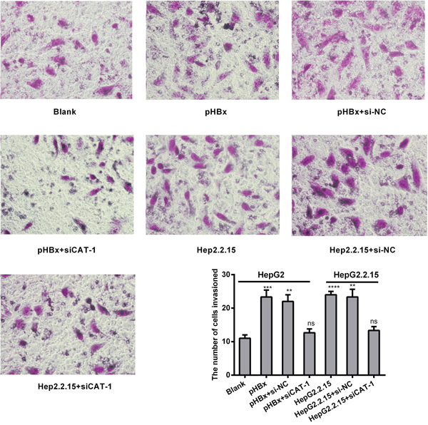 CAT-1 siRNA suppresses invasive ability in the presence of HBx in hepatoma cells.