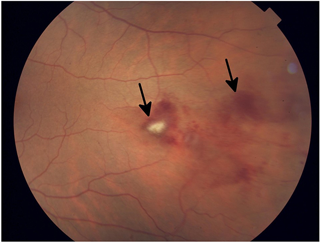 Fundus photograph of the left eye in a patient who developed grade 1 branch vein occlusion while undergoing MEK inhibitor therapy.
