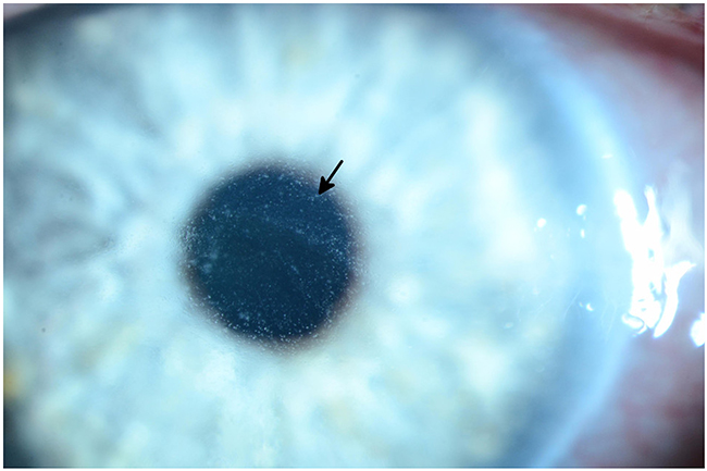 Slit lamp photograph of grade 3 diffuse microcystic changes (arrow) in a patient undergoing treatment with an EGFR inhibitor.