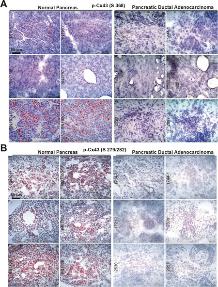Cx43 is downregulated in malignant pancreas tissue but not in normal pancreas tissue.