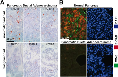 Cx43 and E-Cadherin are downregulated in malignant but not in non-malignant parts of pancreas tissue from the same patients.