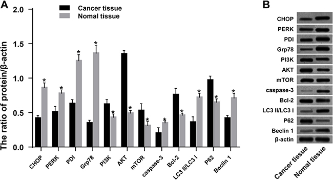 Expression of ERS-related proteins, PI3K/AKT/mTOR pathway-related proteins, autophagy-related proteins, and apoptosis-related proteins in ovarian cancer tissues and adjacent normal tissues.