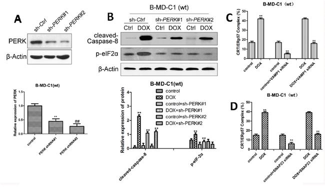 The expression of ER stress-related proteins in wt EC cells following DOX treatment and PERK pathway knockdown alone or in combination.