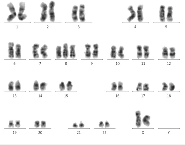 MC displays a whole chromosomal view of visible aberrations in a MDS patient.