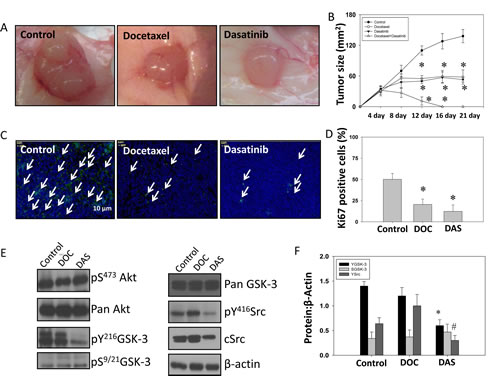 Dasatinib inhibits GSK-3 Y216 phosphorylation and growth of PC3 tumor xenograft in athymic nude mice