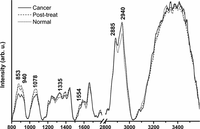 Raman Spectra peaks for patients with normal nasopharynx, post irradiated nasopharynx and nasopharyngeal cancer.