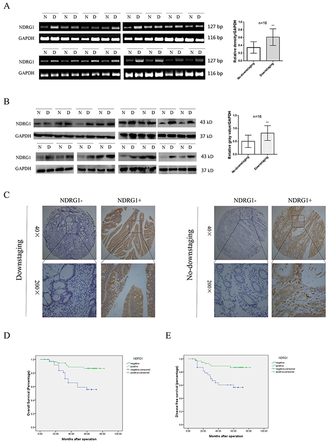 Expression of NDRG1 and its clinical significance in LARC patients.