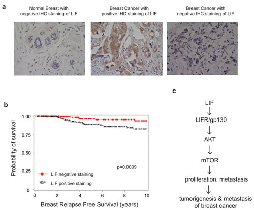High LIF expression levels are associated with a poor relapse free survival of breast cancer patients.