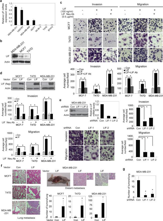 LIF promotes metastasis of breast cancer cells.