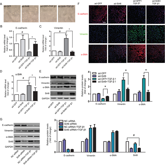 Sirt6 reverses TGF-β1-induced EMT in A549 cells.