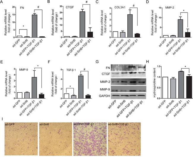 Sirt6 controls EMT-associated cell behaviors.