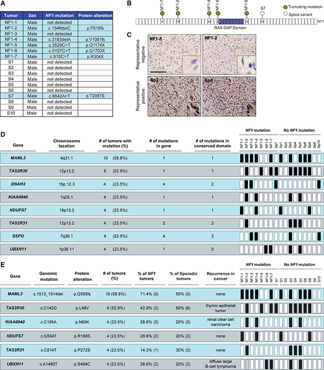 NF1 gene mutation and neurofibromin expression stratify DNFs into two subgroups.