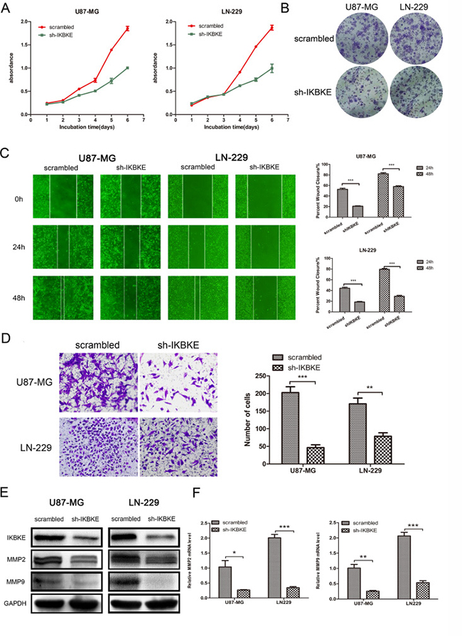 Knockdown of IKBKE inhibited glioma cell proliferation, migration and invasion.