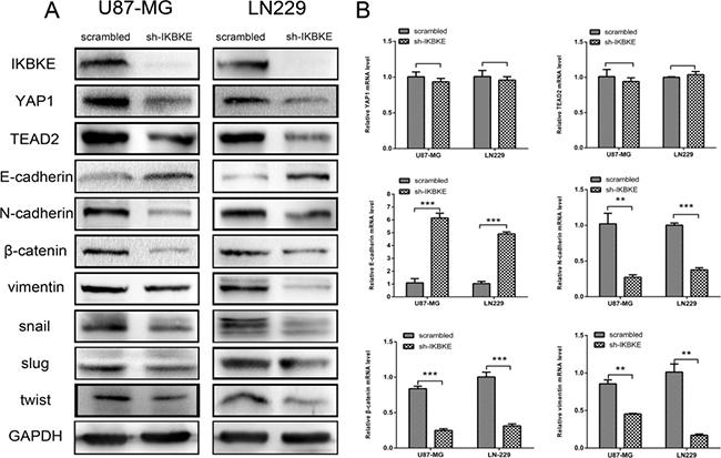 Downregulation of IKBKE reversed epithelial–mesenchymal transition (EMT) via the Hippo pathway.