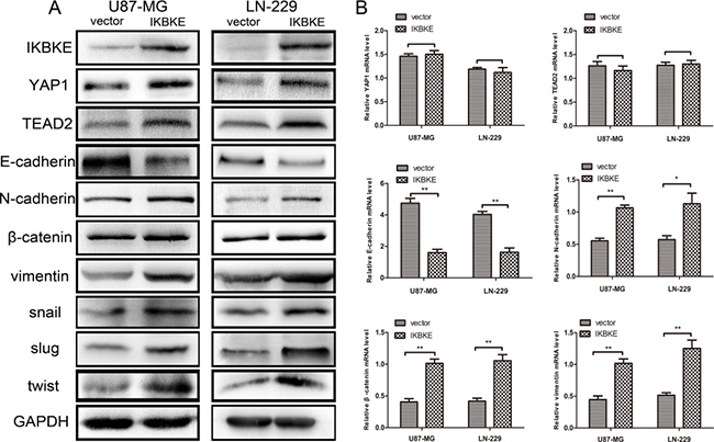 Overexpression of IKBKE promoted epithelial–mesenchymal transition (EMT) via the Hippo pathway.
