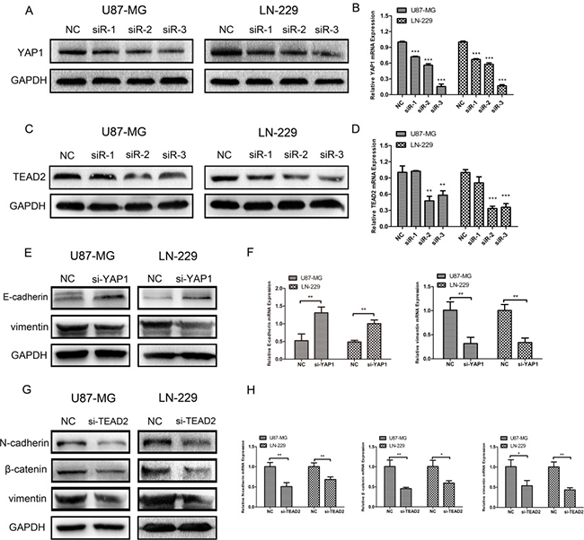 Silencing YAP1 and TEAD2 could inhibit epithelial-mesenchymal transition (EMT) respectively.