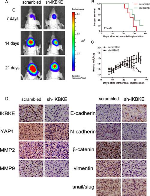 Downregulation of IKBKE inhibited tumourigenesis in intracranial nude mouse.