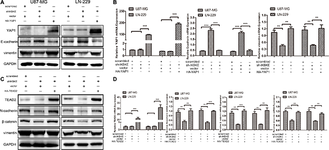 Overexpression of YAP1 and TEAD2 recovered the EMT after cells treated with IKBKE-shRNA.